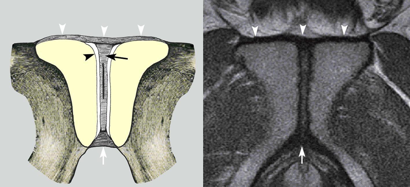 Fig 3 - Symph