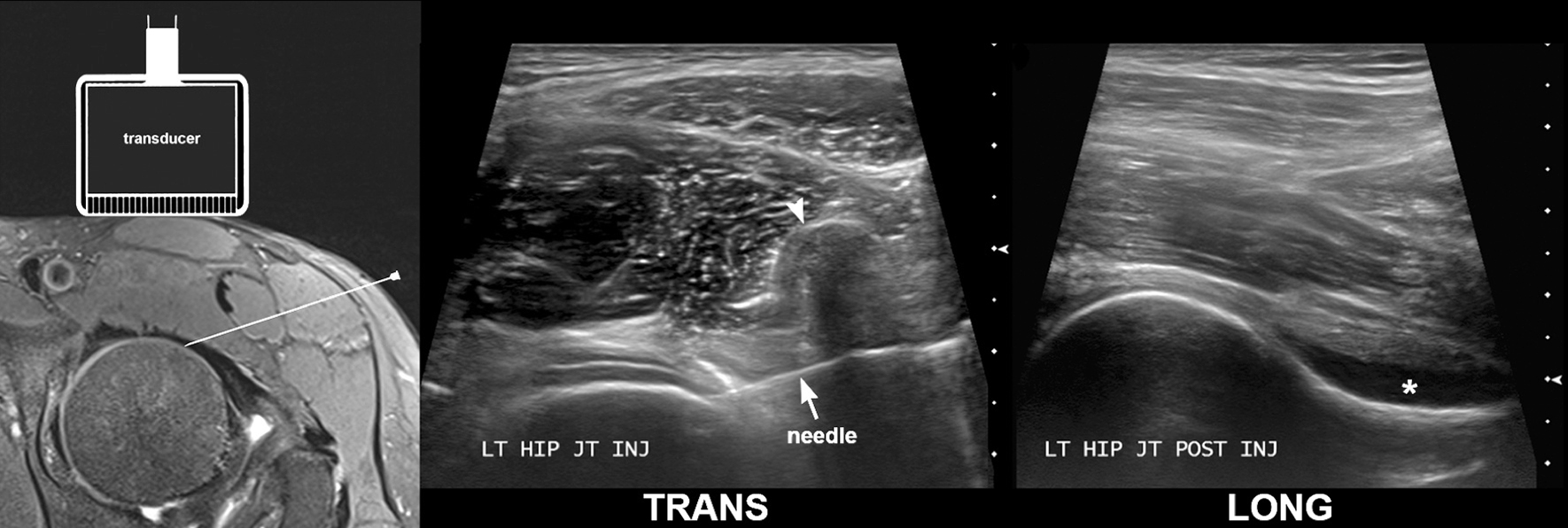Hip / Groin / Thigh Archives - Sports Medicine Imaging