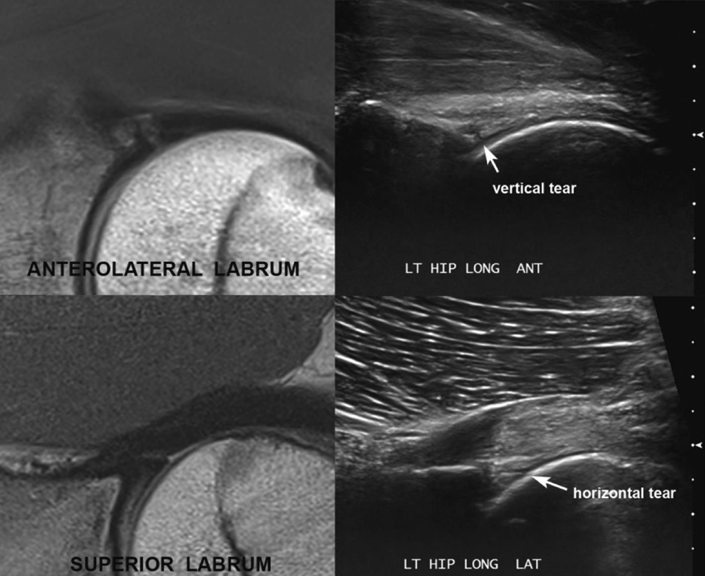 Hip Case 1 - Sports Medicine Imaging