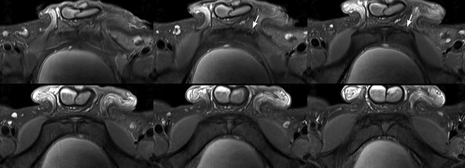 MRI conjointitis