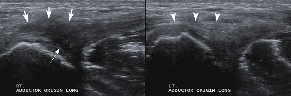 Adductor tendonitis