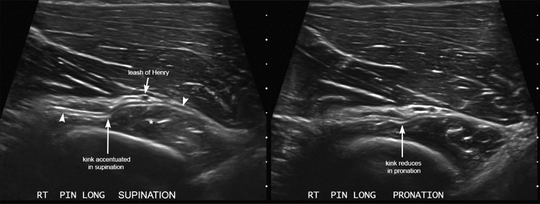 Elbow Case 1 - Sports Medicine Imaging