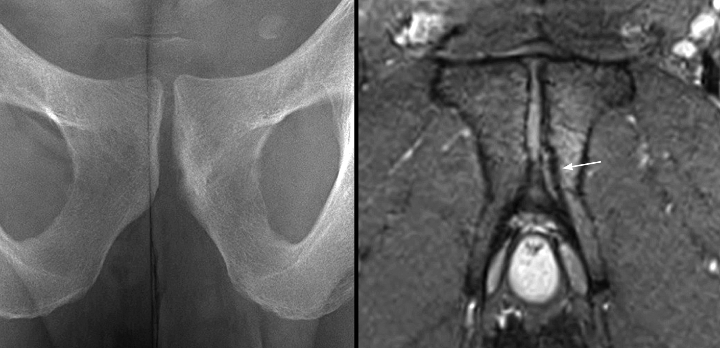 Pubic stress fracture