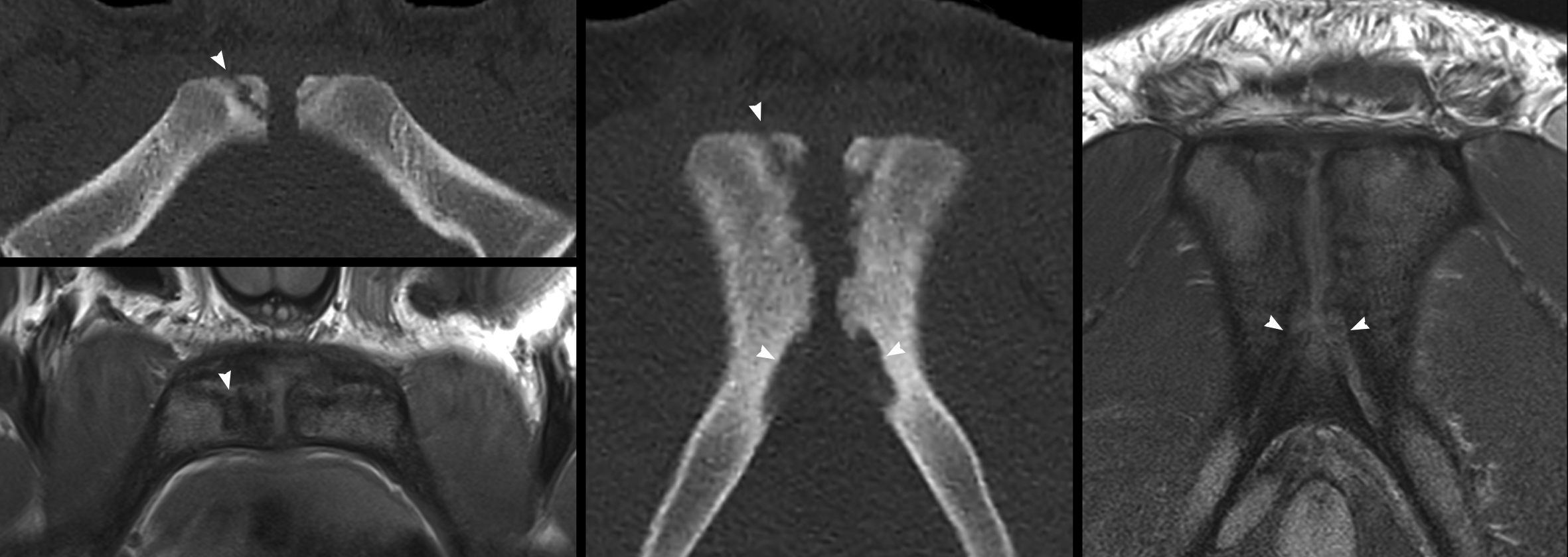 Fig 10. Bilateral pubic apophysitis. 20 year old male footballer with 2 months diffuse groin pain. Axial and coronal CT and matching PD-weighted MR images show irregularly widened physical plates at both pubic apophyses. Fat-suppressed MRI, not shown here, also demonstrated bilateral diffuse pubic marrow oedema.