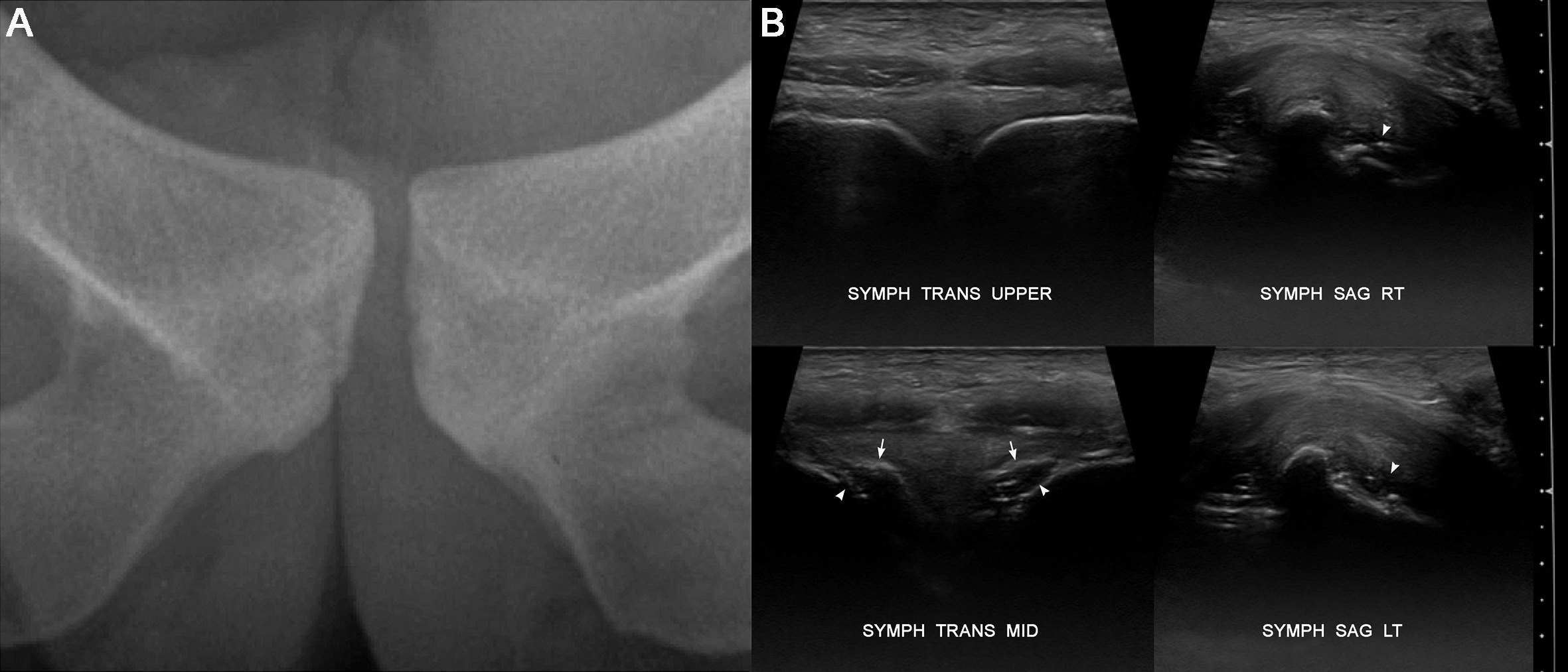 Fig 4. Normal pubic apophyses in a male subject of 21 years age. (A) Xray shows subtle subarticular lucency of open physes at the mid-3rds of each pubic bone. (B) corresponding ultrasound shows smooth & continuous bone surface contours of closed upper physeal segments on each side, but interrupted cortical contours of still open physeal segments at mid-symphysis level. Note the symmetric appearance which includes physeal plate thickness. Arrows = secondary centres of ossification. Arrowheads = physeal plates.