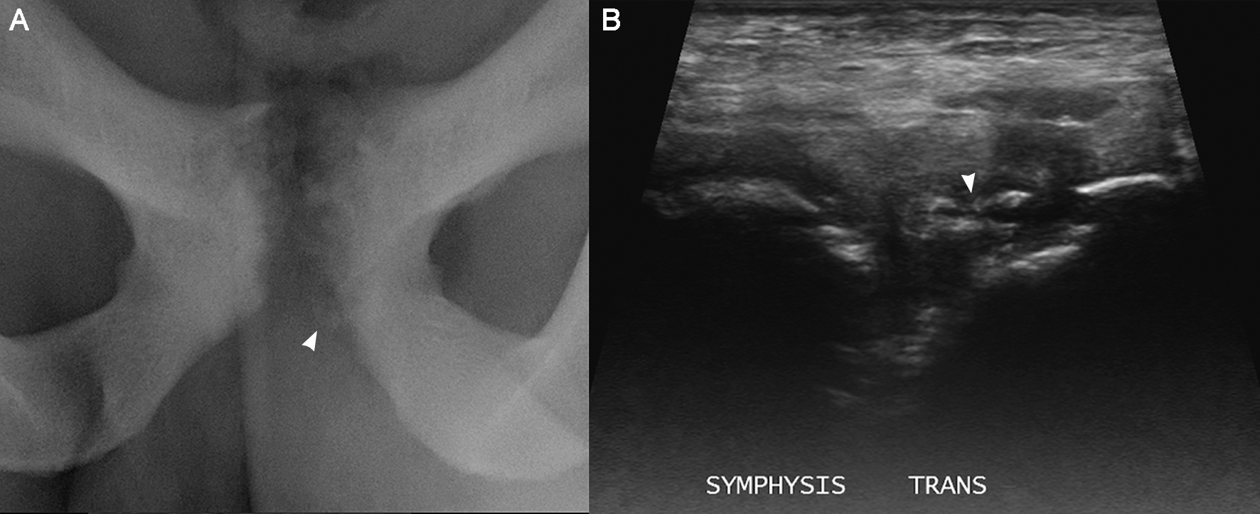 Fig 7. Marked pubic apophysitis with complicating apophyseal avulsion. 22 year old male footballer with acute-on-chronic left groin pain. (A) Xray shows an ill-defined and markedly irregular articular cortical contour along both sides of the symphysis pubis with generalised subarticular lucency that is more extensive and most pronounced on the left. The lowr left-sided secondary centre of pubic ossification has avulsed and displaced slightly (arrowhead). (B) Transverse ultrasound image obtained at mid-to-lower symphysis pubis level shows the avulsed apophyseal fragment (arrowhead) with anechoic fracture line at the lateral aspect of wide subjacent physeal plate and an irregular metaphyseal cortex.