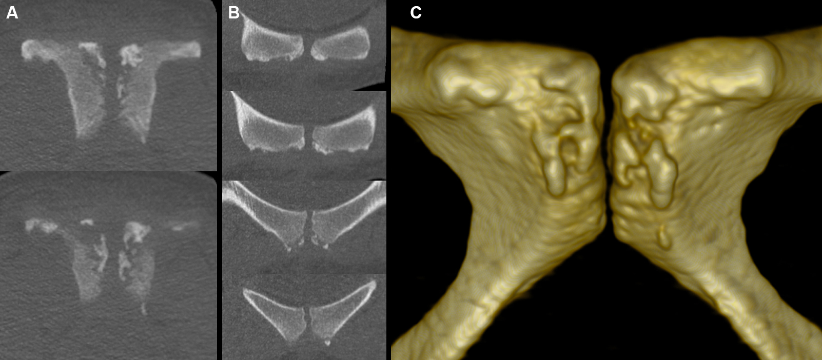 Fig 3. Normal secondary centres of pubic ossification. Coronal (A), axial (B) and volume-rendered (C) images from a CT scan of a normal 23 year old female subject show bilaterally open pubic apophyses. Note the process of ossification begins centrally within the apophyseal cartilage, is variable in pattern and may be asymmetric, and can be either unifocal or multifocal. On CT, physeal plate widening is consequently best assessed on axial images.